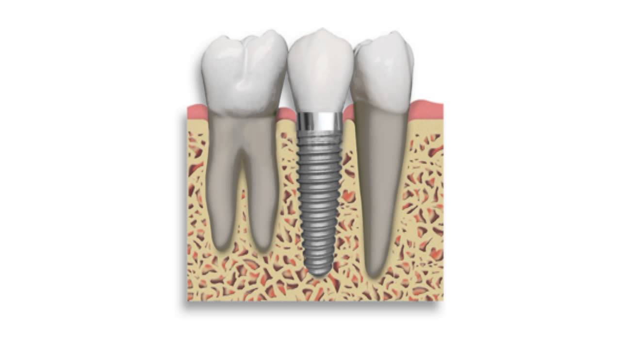 how much does dental implants cost in south africa