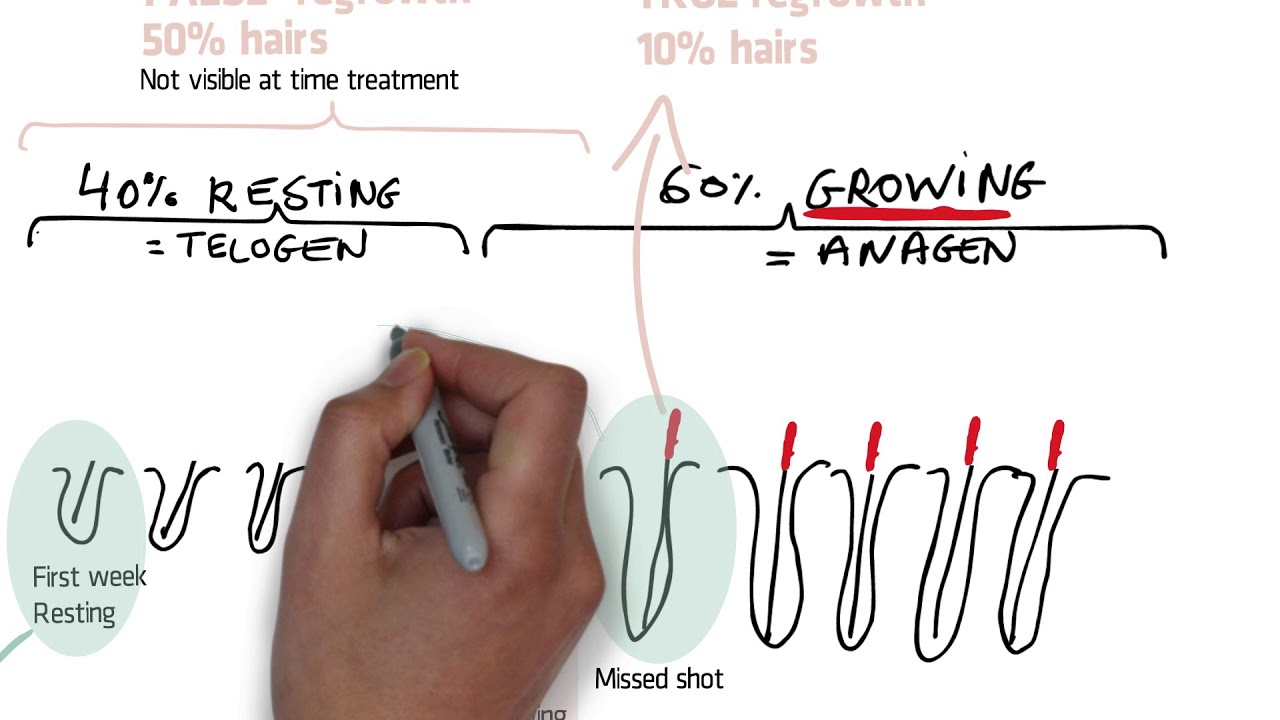 Does hair regrow after electrolysis hair removal? « 2pass Clinic