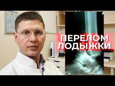 Как лечить перелом лодыжек? Профилактика тромбоэмболий