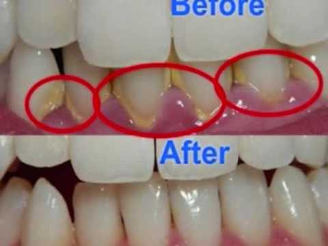 Cara Ampuh Dan Mudah Hilangkan Karang Gigi Secara Alami Tanpa Harus
