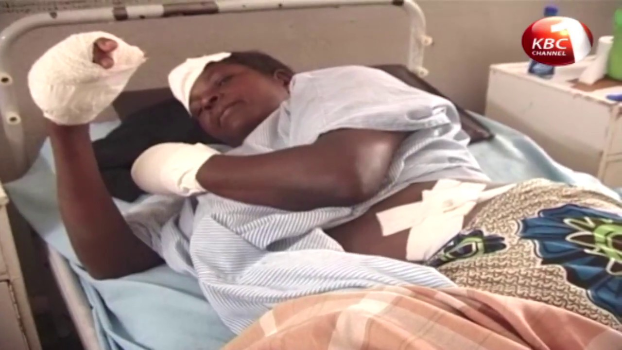 50 year old woman from Migori assaulted by husband for not cooking