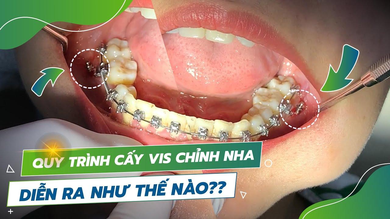 Quá trình cắm vít niềng răng diễn ra như thế nào? Sao lại phải cắm vít?