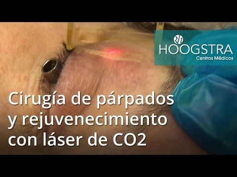 Cirugía de párpados y rejuvenecimiento con láser de CO2 (16134)