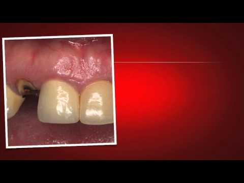 Implant Case #7 - Dr. Tarun Agarwal, Part 1:  Case introduction