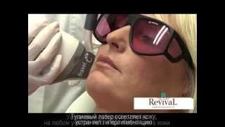 Омоложение лазером Fraxel.(http://revival-clinic.ru/ Fraxel (фраксель): эффективное и безопасное лазерное омоложение фракционным лазером, лазерная..., 2013-11-08T11:57:44.000Z)