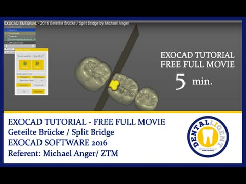 DENTALLIGENT | 2016-FREE FULL EXOCAD SUPPORT-Video - About