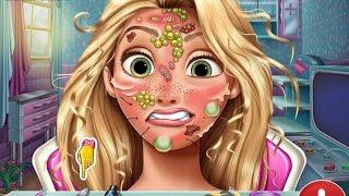 Мультик игра для детей Лечить кожу Рапунцель (Rapunzel Skin Doctor)