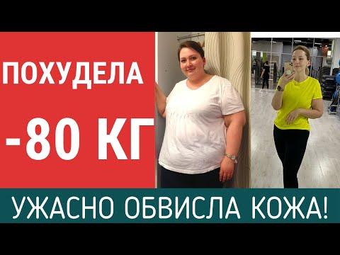 ПОХУДЕЛА НА 80 КГ. ПОКАЗЫВАЮ ОБВИСШУЮ КОЖУ. 6 месяцев после резекции желудка. Отчет о похудении.