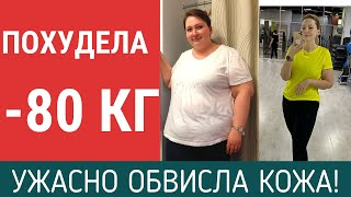 ПОХУДЕЛА НА 80 КГ ПОКАЗЫВАЮ ОБВИСШУЮ КОЖУ 6 месяцев после резекции желудка Отчет о похудении