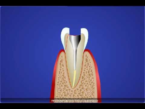 Реставрация зуба с помощью вкладки