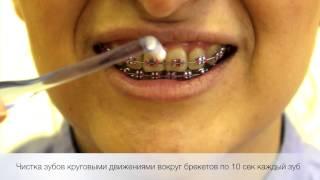 Гигиена зубов с брекет-системой(Как правильно чистить зубы с брекет-системой., 2014-07-02T22:09:56.000Z)