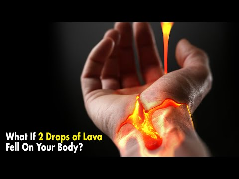 image for What If 2 Drops of Lava Fell On Your Body?