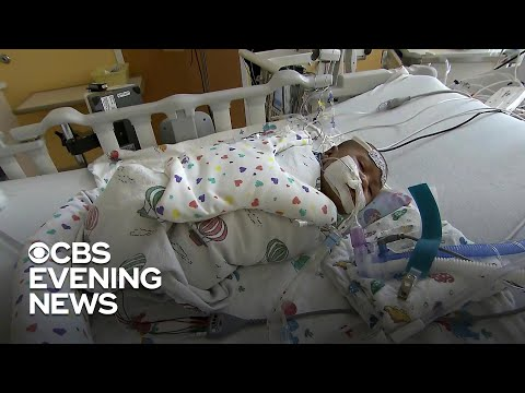 Hospitals See Rise In Babies With Respiratory Illness RSV