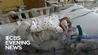 hospitals-rise-babies-respiratory-illness-rsv