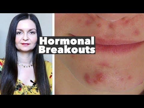 hqdefault - Cause Of Premenstrual Acne