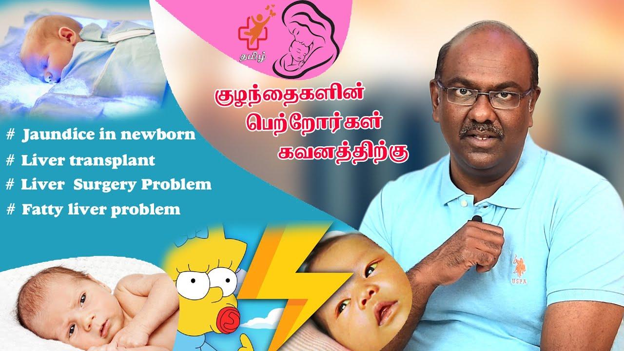 Jaundice in newborn | Liver  Surgery Problem | Fatty liver problem | ss child care tamil