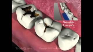 Diş Hekimi Namık Kemal  AYDIN ÇÜRÜK KLİP
