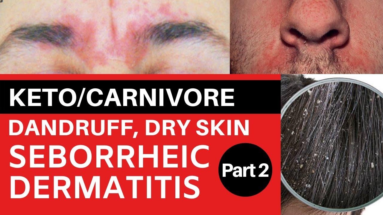 dermatitis szemkezelés
