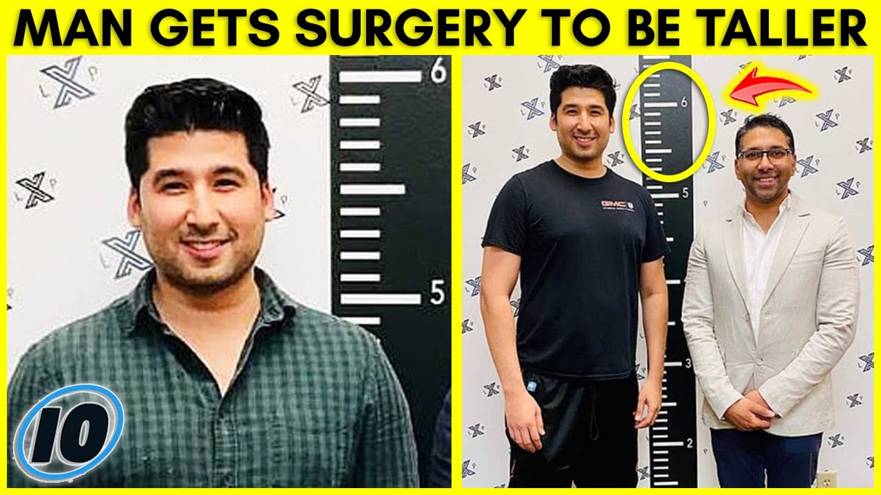 Texas Man Undergoes Crazy Surgery To Make Himself Taller