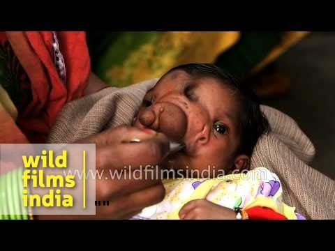 Beautiful Girl Full Screen Wallpaper Baby Girl Born With A Trunk Worship As Lord Ganesha Youtube
