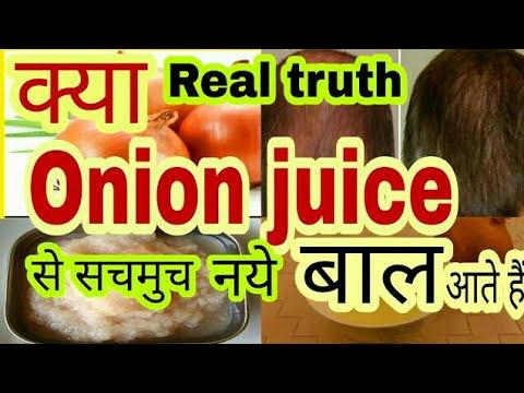Onion juice for hair growth || क्या Onion juice से नय बाल आते हैं [hindi] #tannudada