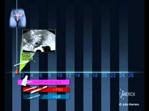 IVF Stimulation : short protocol