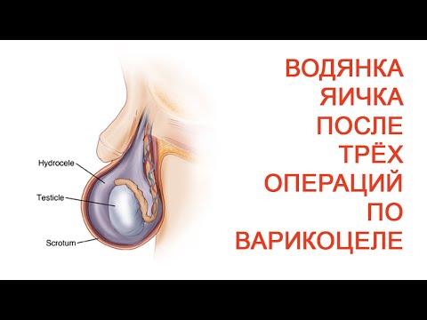 Почему после операции на варикоцеле болит яичко