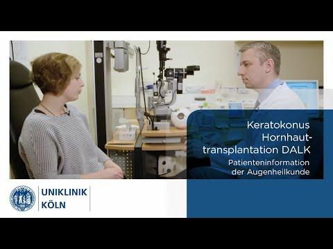 uniklinik-köln-|-augenklinik:-hornhauttransplantation---keratokonus---dalk-(patienteninformation)