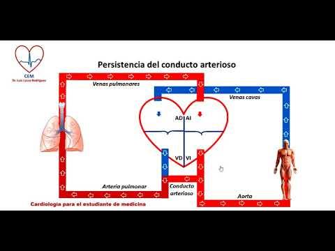 ¿La hipertensión pulmonar produce edema pulmonar?