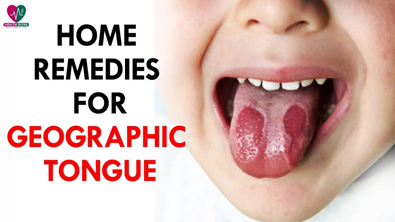 How to cure a tongue 94