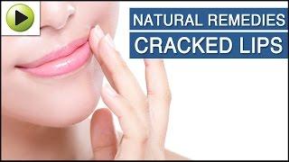Natural Remedy For Cracked Lips | Naattu Maruthuvam – Sun tv Show