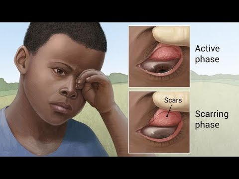 Trachoma - a very common infectious eye disease