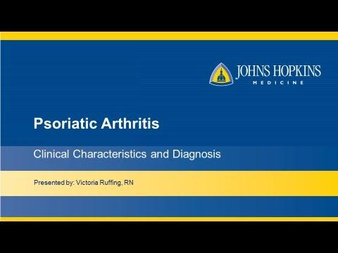hqdefault - Psoriatic Arthritis Symptoms Test