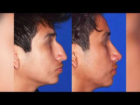 Watch as this Patient has the Hump in his Nose Corrected, Rhinoplasty, Nose Job