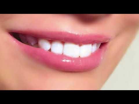 Ternyata Inilah 20 Cara Merawat Gigi Agar Tetap Putih Bersih Dan