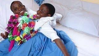 Sababu ya KIFO cha MAPACHA WALIOUNGANA  daktari aweka wazi kilichotokea