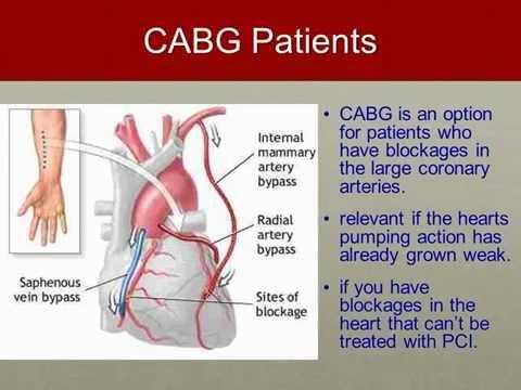 Coronary Artery Bypass Grafts (CABG)