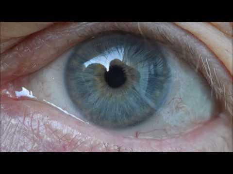 Pupils and light