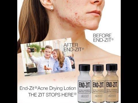 hqdefault - End Zit Acne Cream