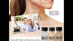 hqdefault - End Zit Acne Cream