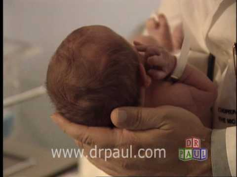 handling baby's head- fontanelles-soft spots-www.drpaul - youtube, Sphenoid