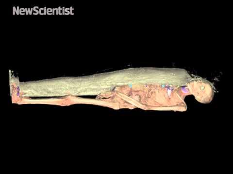 Mummy X-rays let you peel its body