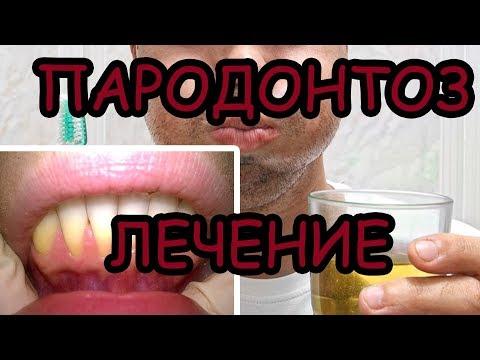 Пародонтоз лечение народными средствами Оголение шейка зуба Небеда Вернем десну обратно