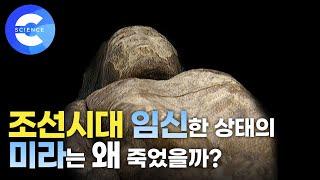 살아있는 역사 '미라' CT촬영으로 밝혀…