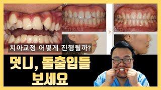 덧니, 돌출입 치아교정 치료과정. 치료전 / 치료후