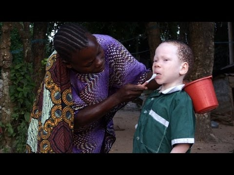 Albinos look for safety on Tanzania's Ukerewe Island