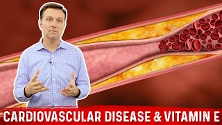 Coronary Heart Disease & Vitamin E