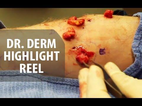 Dr. Derm Highlight Video