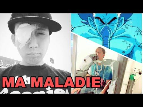 [Vlog] Ma maladie incurable et comment elle affecte ma vie et mon travail