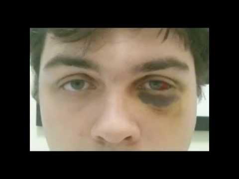 Black Eye Healing Time Lapse